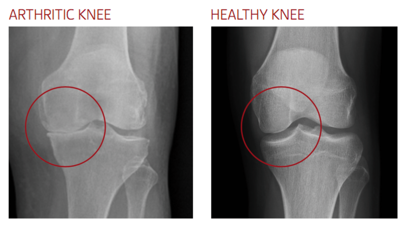 arthritic knee xray