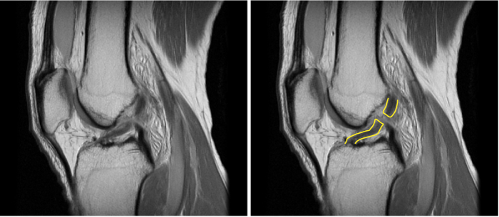 MRI of a ruptured ACL. In an uninjured ligament, the fibres run very straight, with no interruption.