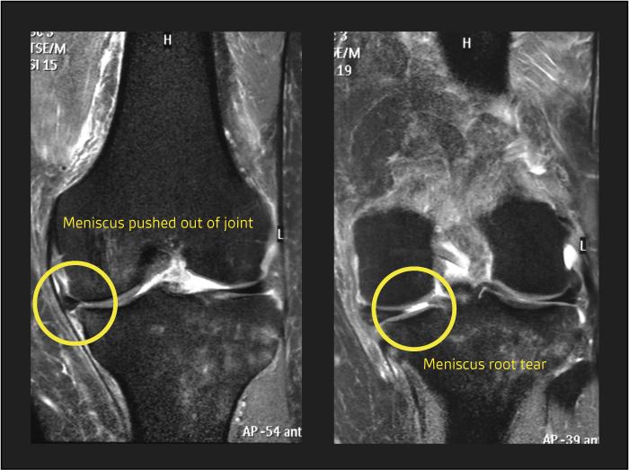 root-tear-MRI