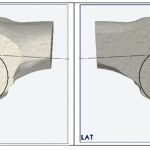 Kinematic Alignment of a Total Knee Replacement